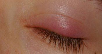 göz kapağı şişmesi